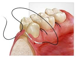 IMAGE FOR ORAL SURGERY IN DENTAL SPA - BEST DENTIST IN PATNA