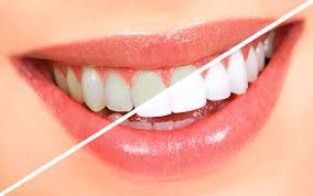 IMAGE USE FOR COSMETIC DENTISTRY IN DENTAL SPA- BEST DENTIST IN PATNA
