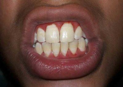 bleeding-gums-1