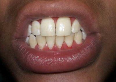 bleeding-gums-3