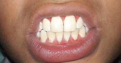 bleeding-gums-4