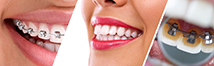 IMAGE IS USED FOR ORTHODONTICS IN DENTAL SPA- BEST DENTIST IN PATNA